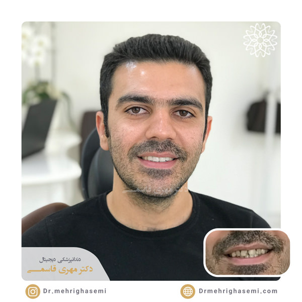 نمونه درمان های مرکز دندانپزشکی دیجیتال دکتر مهری قاسمی