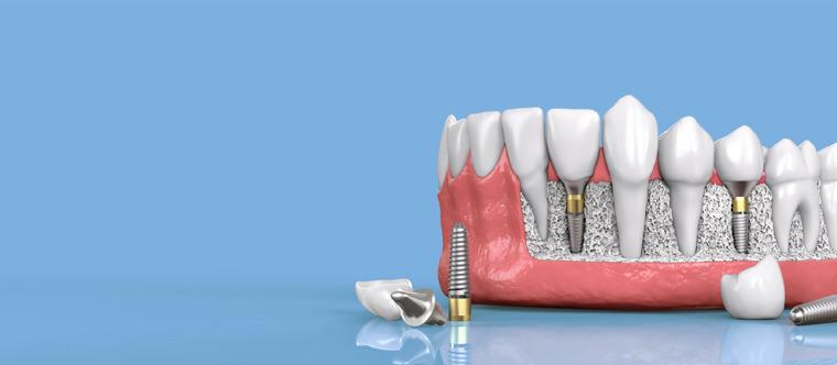ایمپلنت دندان نوعی پروتز با پایههایی از جنس تیتانیوم بوده که سازگاری بالایی با بدن دارد.
