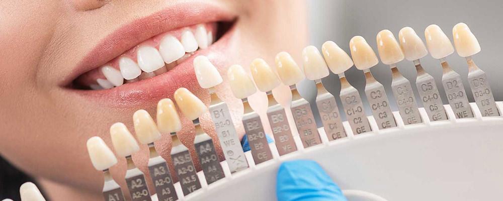 باور های غلط در باره لمینیت دندان ها