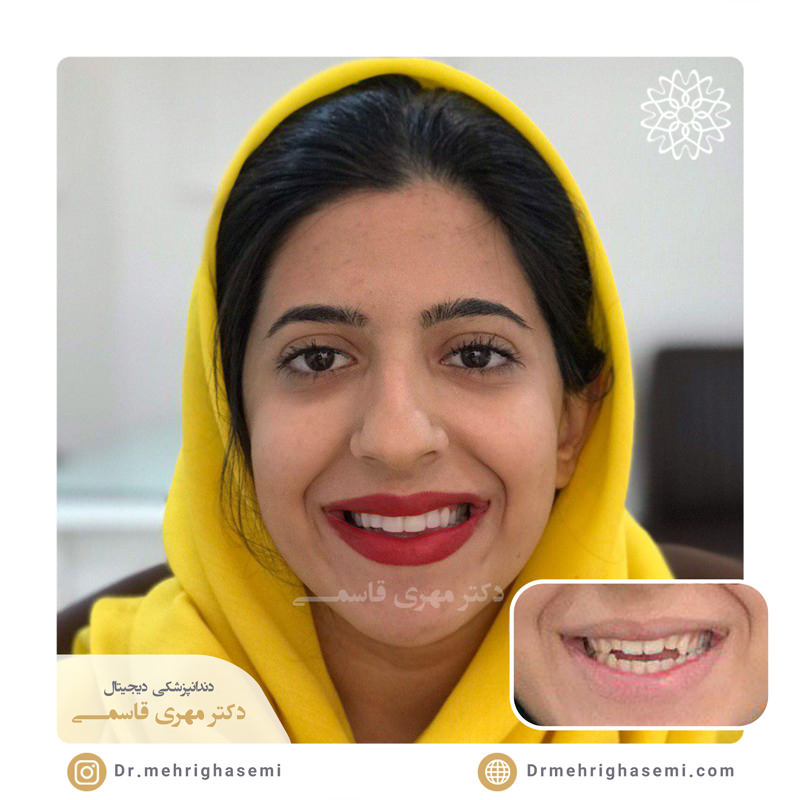 نمونه درمان دندانپزشکی زیبایی