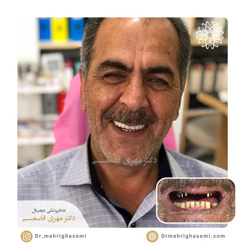 نمونه درمان ایمپلنت دندان