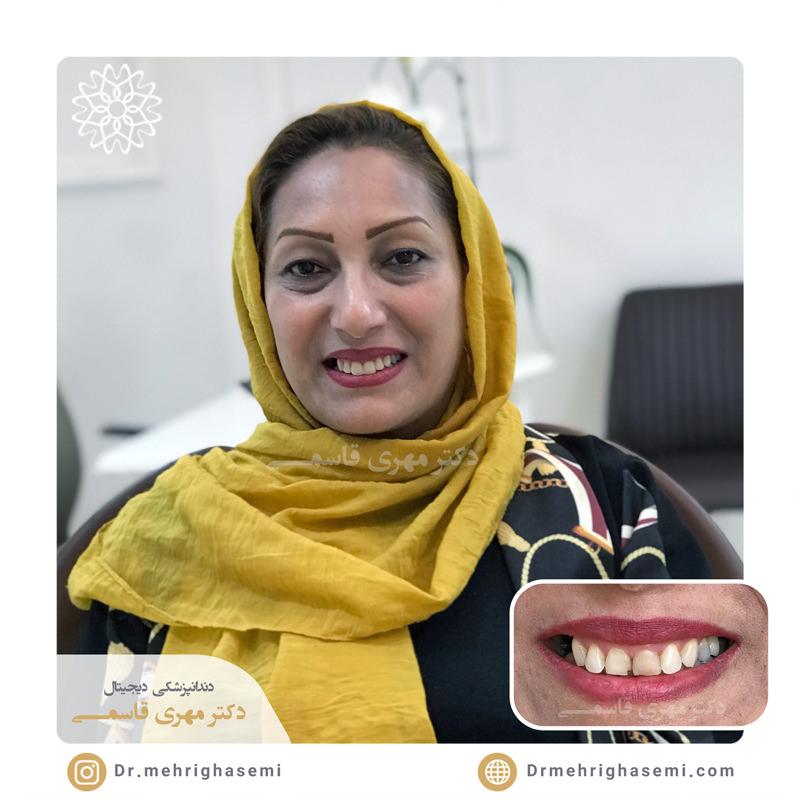 نمونه درمان لمینیت دندان