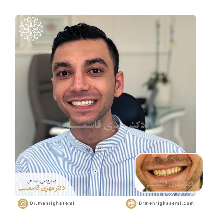 نمونه درمان بلیچینگ دندان