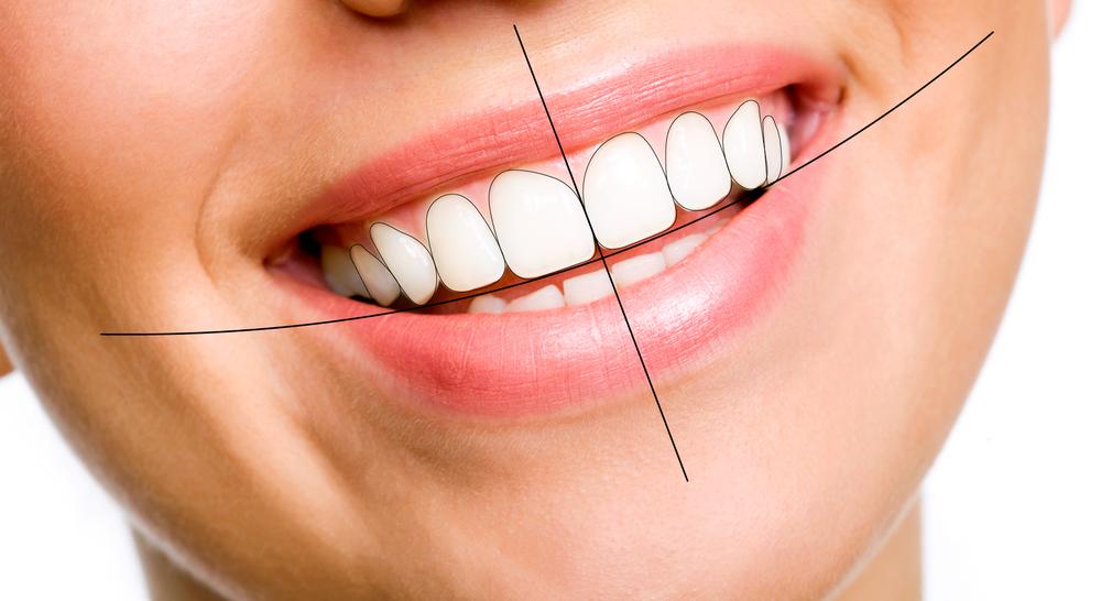 درمان های زیبایی دندانپزشکی شامل چه چیزهایی است؟