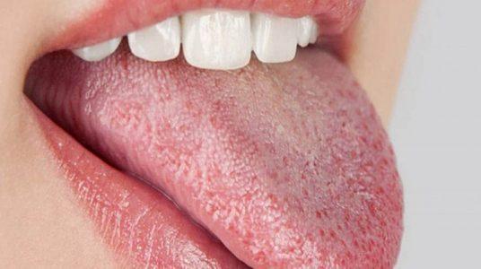 زروستومیا یا خشکی دهان
