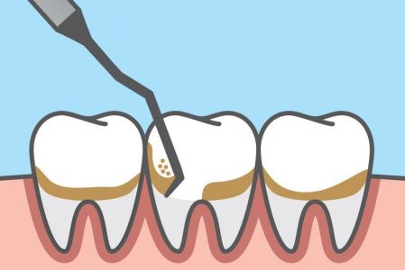 جرمگیری از درمان هایی است که انجام منظم آن برای حفظ سلامت دندان ها ضروری است.