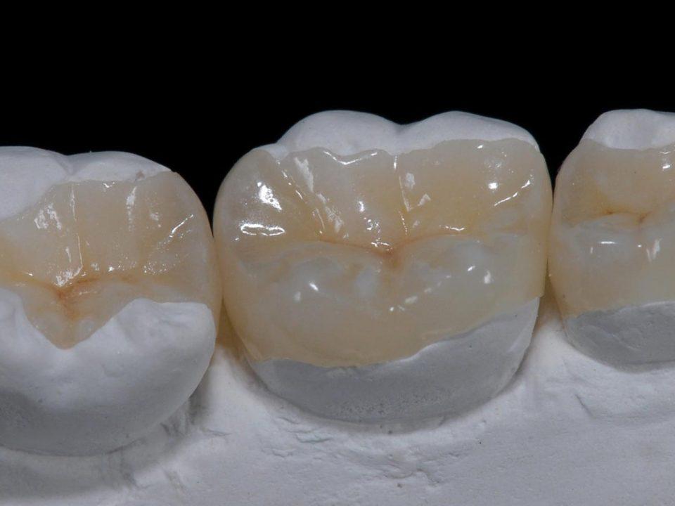 اینله و آنله در پروتز هستند که در دندان های با تخریب زیاد استفاده می شوند.