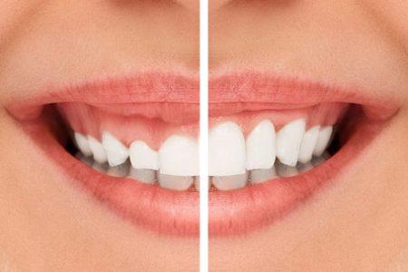لیفت لثه در بسیاری از موارد برای درمان افزایش حجم لثه استفاده می شود.