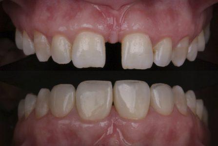 بستن فضاهای بین دندانی امروزه دردندادنپزشکی زیبایی اهمیت زیادی دارد.