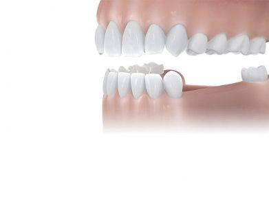 بهترین درمان برای اصلاح فضاهای بزرگ بی دندانی ایمپلنت است.