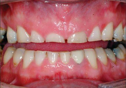 ساییدگی های دندانی از مشکلاتی هستند که درمان آنها در دندانپزشکی جزو درمان های سخت محسوب میشود.